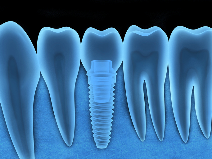 An image of a Dental Implants in Pontotoc, MS