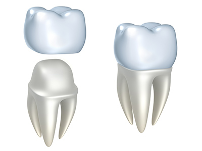 Dental Crowns by dentist in Pontotoc, MS.