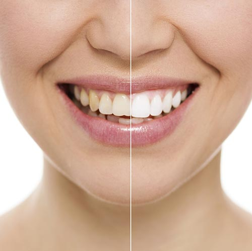 Teeth Whitening by dentist in Pontotoc, MS.